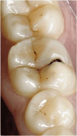 Заболевания зубов и полости рта - стоматология Мастер клиник в е