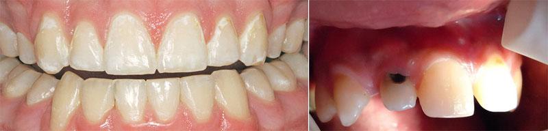фотография зубов пораженных пришеечным кариесом на разных стадиях