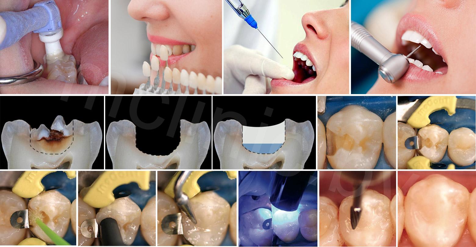 общий принцип лечения зубов, пораженных кариесом