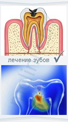 GLOBAL WHITE Система для домашнего отбеливания зубов.